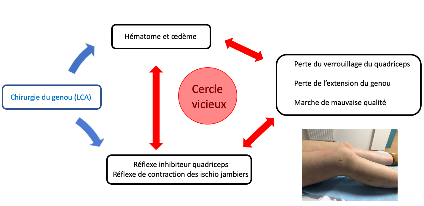 arthrogenic-muscle-inhibition